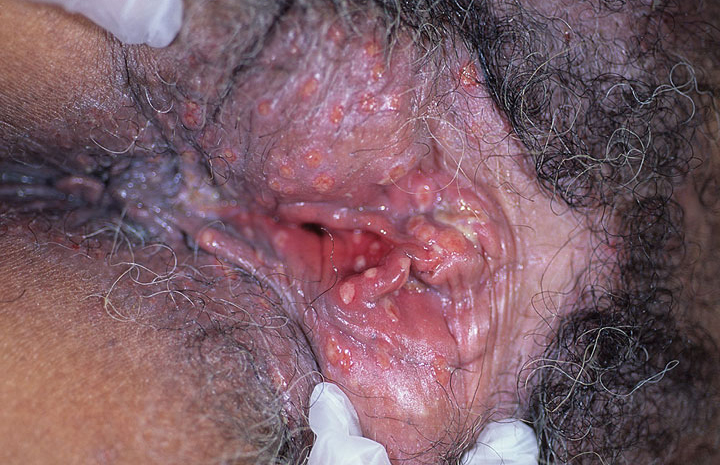 Symptoms of anal herpes