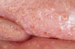 female-genital-herpes3