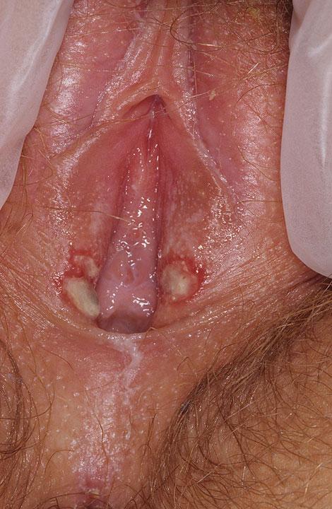 female-genital-herpes4