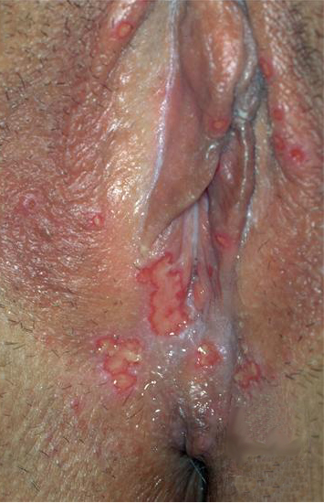anal herpes pictures symptoms
