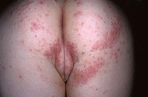 female-genital-herpes8