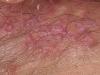 female-genital-herpes7
