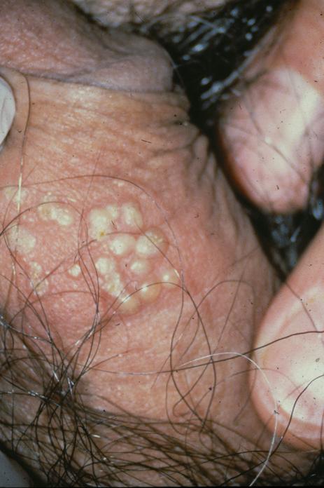 male-genital-herpes6
