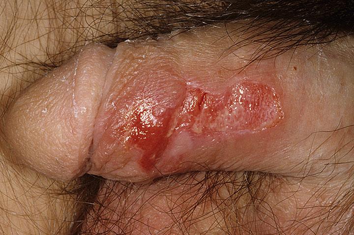 male-genital-herpes7