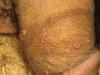male-genital-herpes5